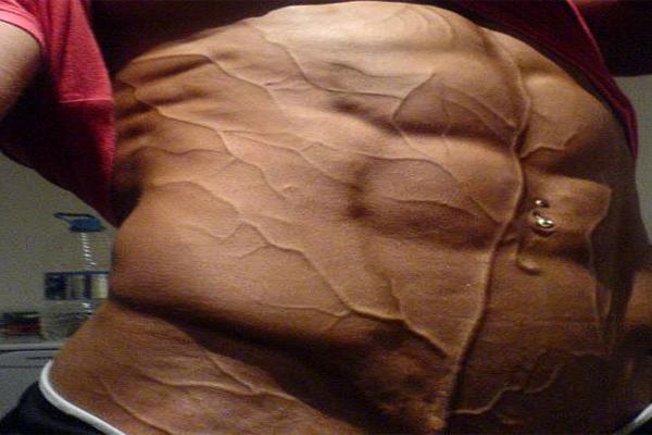 vasodilatação-aquecimento-corporal