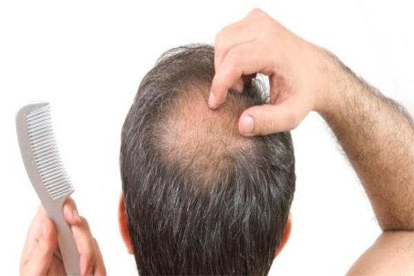 quais-esteroides-nao-causam-perda-de-cabelo